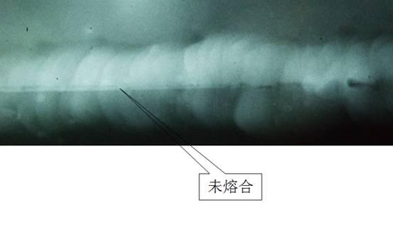 二、未熔合危害 未熔合是一种面积型缺陷,坡口侧未熔合和根部未熔合明显减小了承载截面积,应力集中比较严重,其危害性仅次于裂纹。 三、未熔合的产生原因 (1)焊道清理不干净,存在油污或铁锈; (2)坡口设计加工不合理 ,液态金属流动有死角; (3)焊接电流过小,焊丝未完全熔化; (4)焊枪没有充分摆动,焊接位置存在死角; (5)焊工为了加快焊接速度,擅自提高电流等。 四、未熔合射线底片影像特征 (1)根部未熔合:典型影像是连续或断续的黑线,靠近母材侧影像轮廓整齐呈直线状且黑度较大,为坡口或钝边的机械加工痕迹。